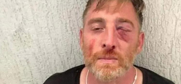 Cameraman overlijdt aan verwondingen nadat hij in elkaar werd geslagen tijdens anti-pride onlusten in Georgie